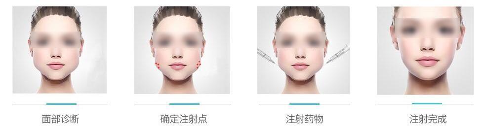 瘦脸1.jpg