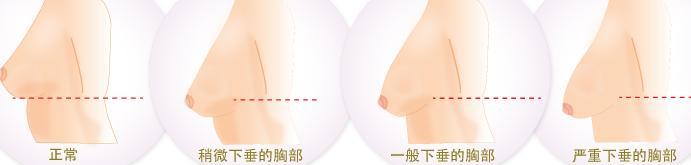 乳房下垂.jpg
