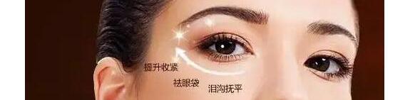 眼袋3.jpg